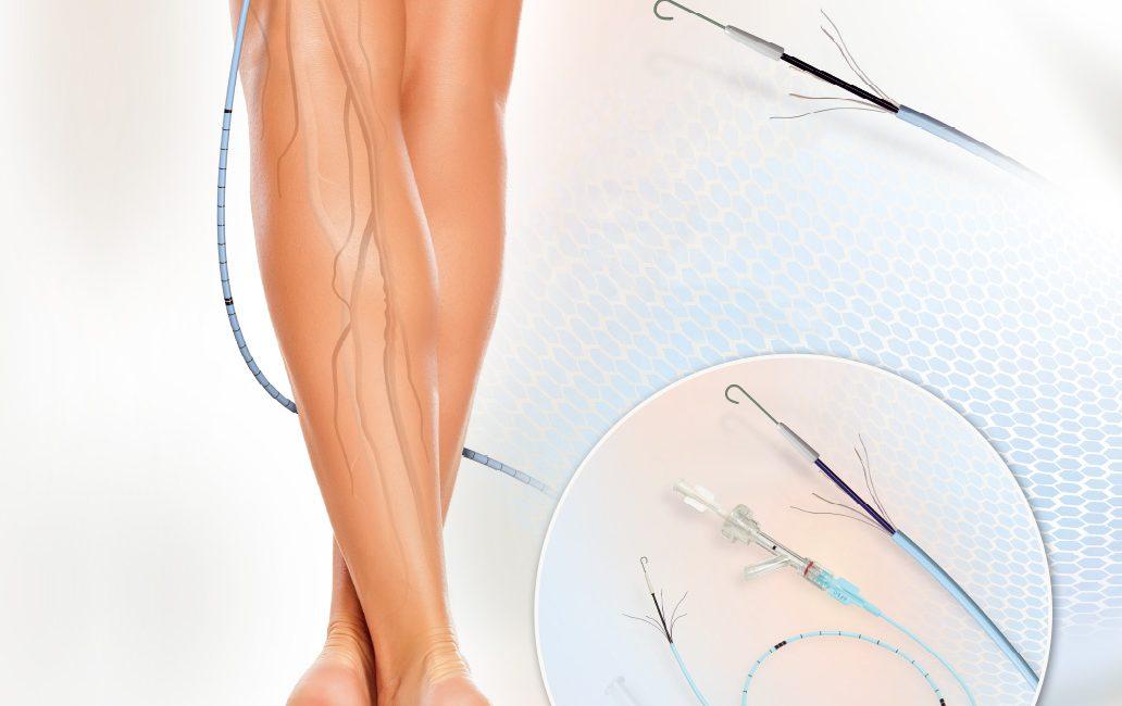 Znalezione obrazy dla zapytania Implanty żyły odpiszczelowej